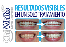 KIT BLANQUEAMIENTO DENTAL CON LED 30MIN
